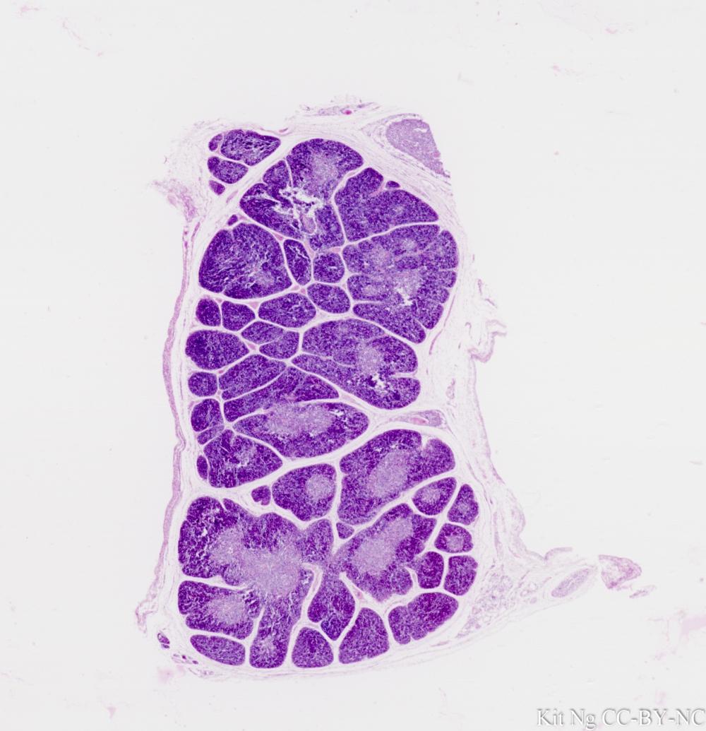 Fetal Thymus.jpg