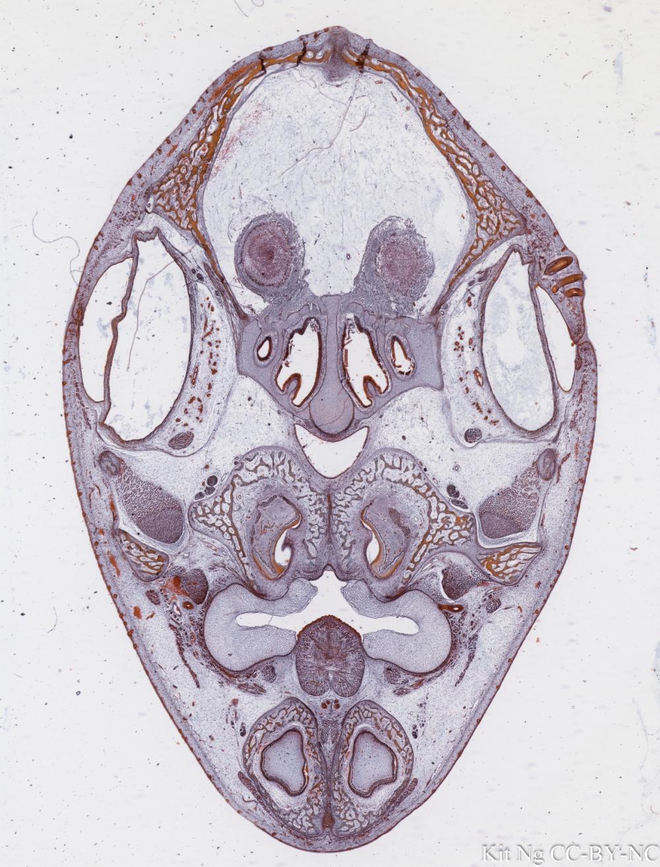 Membranous bone foetal skull.jpg