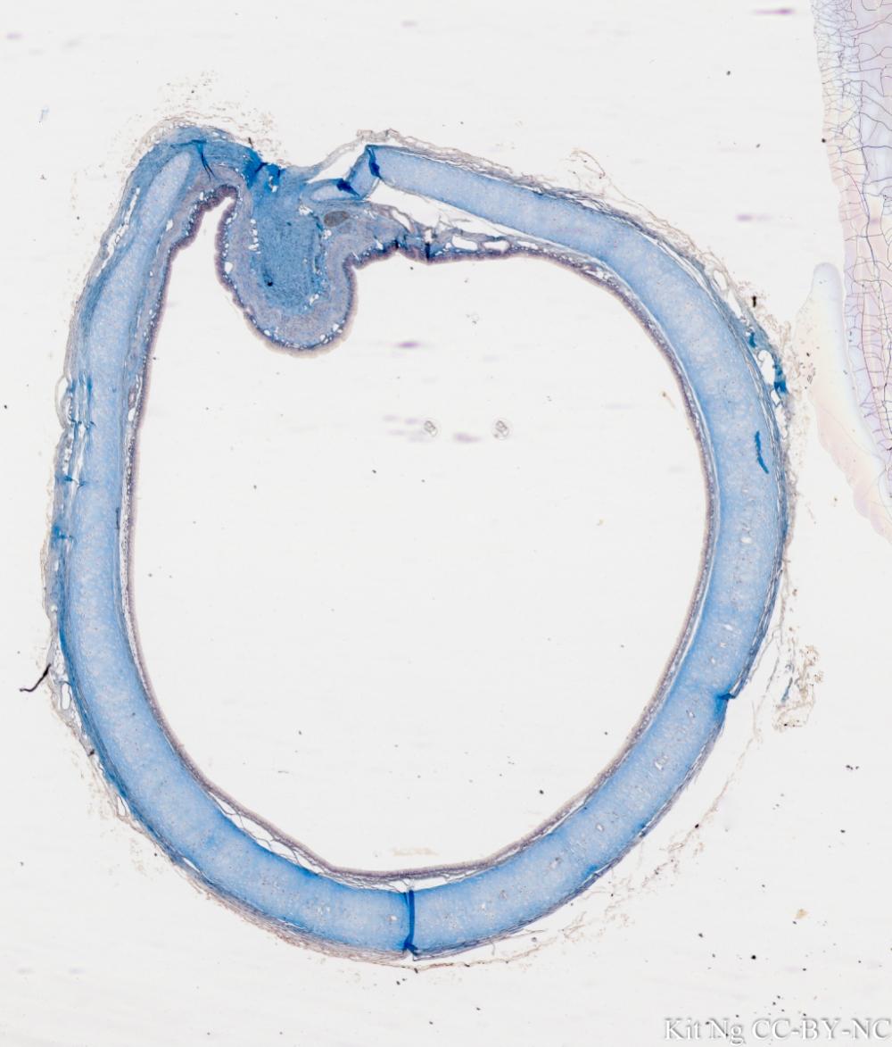 Trachea c.s. #2.jpg